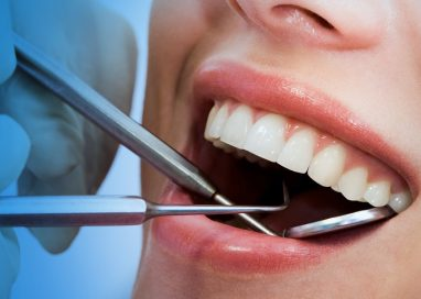 Why Some Dental Veneers Look Fake