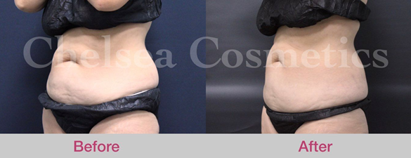 Learn More About Liposuction Surgery